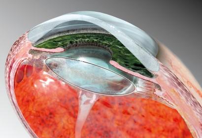 Cross-section of the eye_VORSCHAU