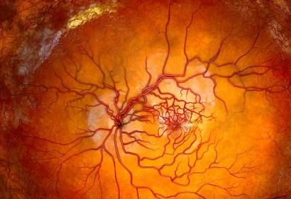retinal vessels_vorschau